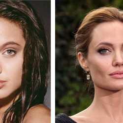 Hollywood yanağı (bişektomi) hakkında merak ettikleriniz